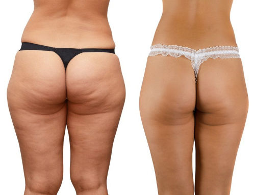 cellulite-ozonoterapia.