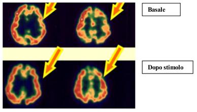 cerebrale-ozonoterapia