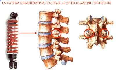5.a L'artrite reumatoide