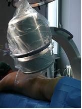 Artrosi della colonna vertebrale